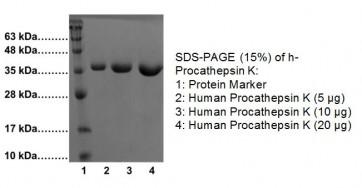 Procathepsin K, human recombinant