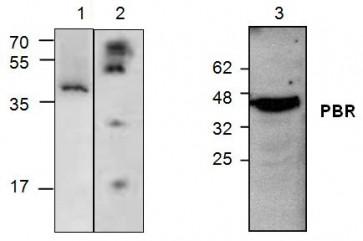 PBR Antibody