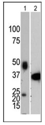 PTP1B Antibody (Clone 107AT531)