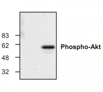 Phospho-Akt Antibody