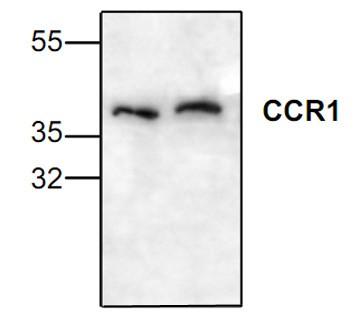 CCR1 Antibody