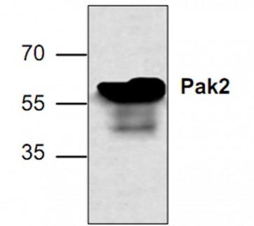 PAK2 Antibody