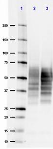 Western Blot analysis of Alzheimer's disease human brain lysate (2) and normal human brain lysate (3) using Anti-Tau Antibody