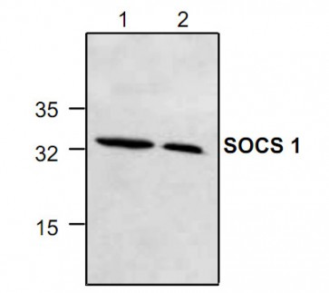 SOCS1 Antibody