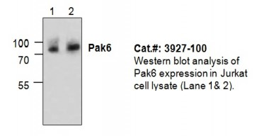 PAK6 Antibody