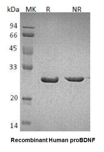 ProBDNF, human recombinant