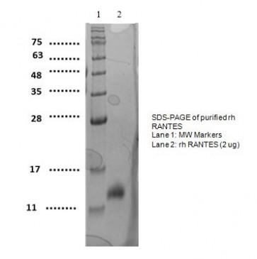 RANTES, human recombinant
