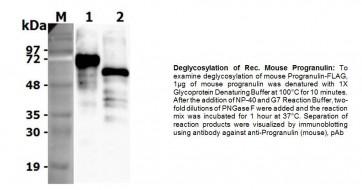 Human CellExp™ Progranulin, Mouse Recombinant
