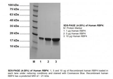RBP4, human recombinant