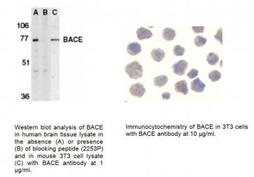 BACE Antibody (CT)