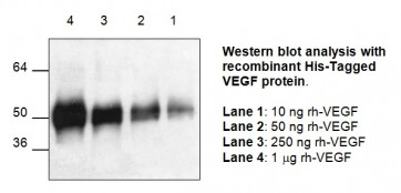 VEGF Antibody