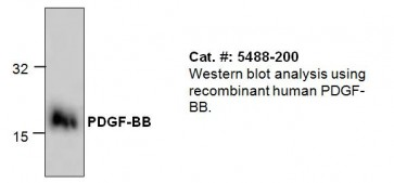 PDGF-BB Antibody