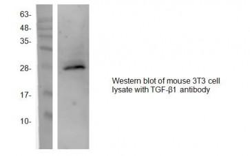 TGF-β1 Antibody