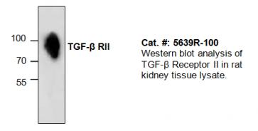 TGF-beta Receptor II Antibody