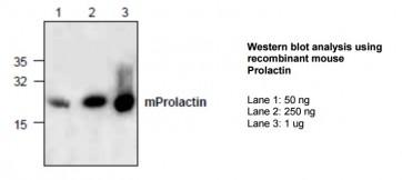 Prolactin Antibody