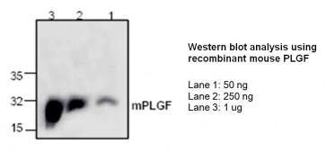 PlGF Antibody