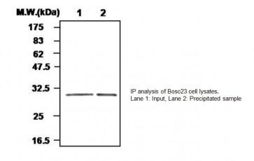 Glutathione Peroxidase 3 Antibody (Clone 55A)