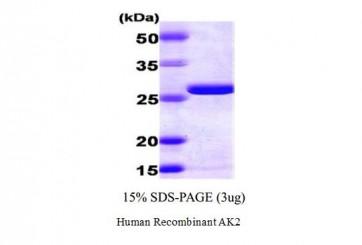 Human Recombinant AK2