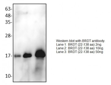 BRDT Antibody