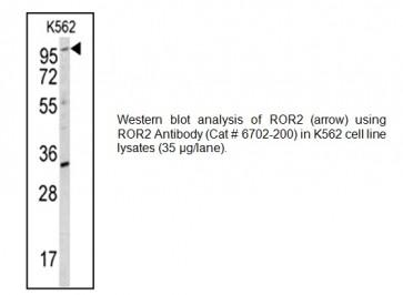 ROR2 Antibody