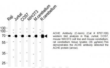 ACHE Antibody (CT) (Clone 684CT8.3.4)