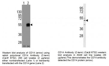 CD-14 Antibody (CT)
