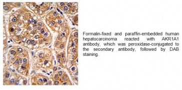 AKR1A1 Antibody (CT)