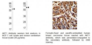 AKT1 (T450) Antibody (CT)