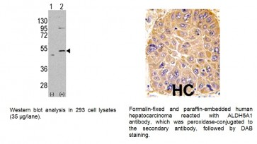 ALDH5A1 Antibody (NT)