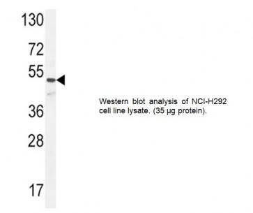 ANGPT1 Antibody (CT)