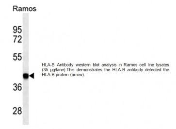 HLA-B Antibody (Clone # 7G7F9)