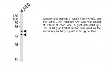 CD34 Antibody (Center) (Clone # 132CT29.1.5)