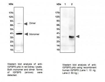 IGFBP5 Antibody