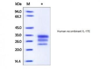 Human CellExp™ IL-17E, human recombinant