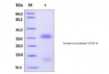 Human CellExp™ VEGF-B, human recombinant