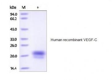 Human CellExp™ VEGF-C, human recombinant