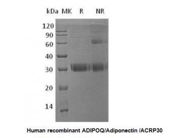 Human CellExp™ ADIPOQ /Adiponectin /ACRP30, human recombinant