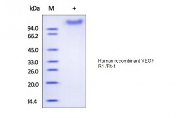 Human CellExp™ VEGF R1 /Flt-1, human recombinant