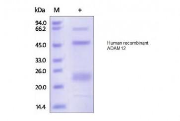 Human CellExp™ ADAM12, human recombinant