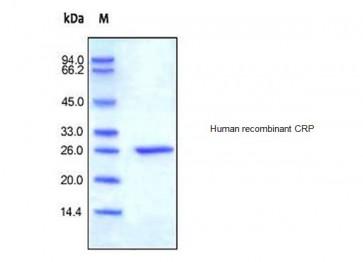 Human CellExp™ C-reactive/CRP, human recombinant