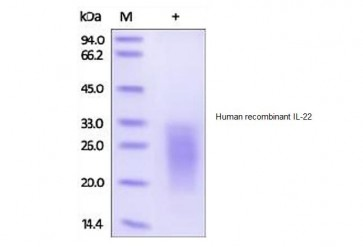 Human CellExp™ IL-22, human recombinant