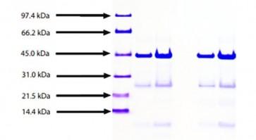 Apolipoprotein AIV, Human Plasma