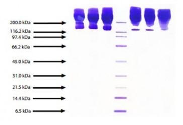 Apolipoprotein B, Human Plasma