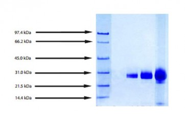 Azurocidin, Human Neutrophil (Cationic protein 37)