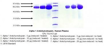 Alpha 1 Antichymotrypsin, Human Plasma