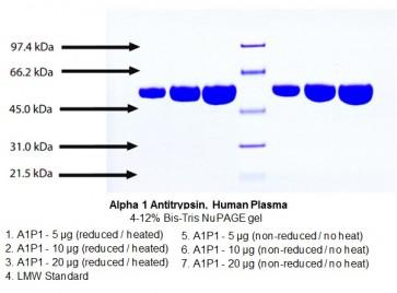 Alpha 1 Antitrypsin, Human Plasma