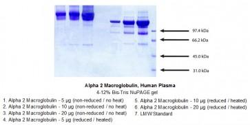 Alpha 2 Macroglobulin, Human Plasma