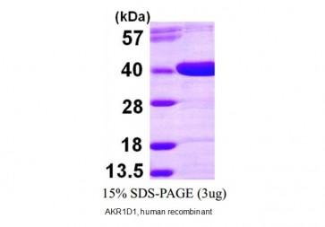 AKR1D1, human recombinant