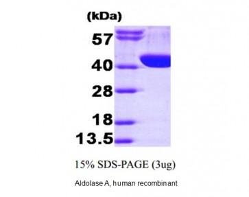 Aldolase A, human recombinant
