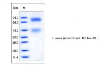 Human CellExp™ HGFR/c-MET, human recombinant